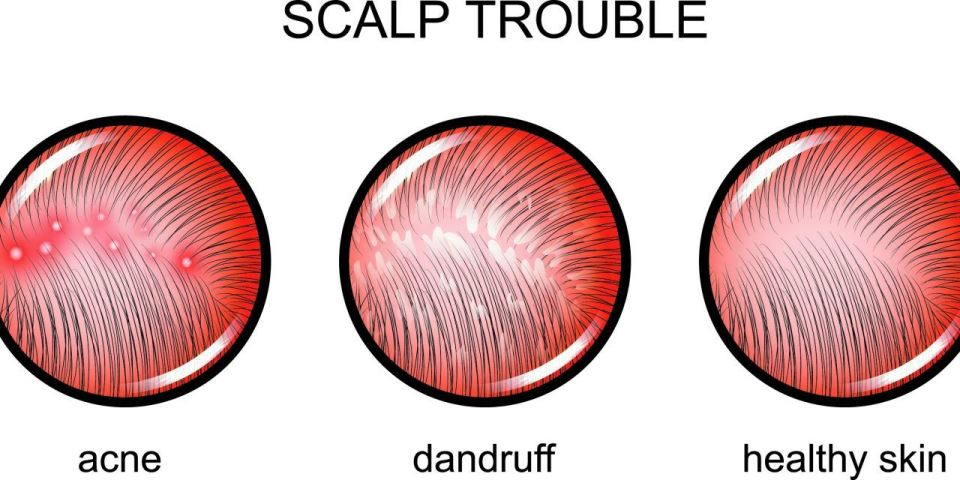 Scalp Acne