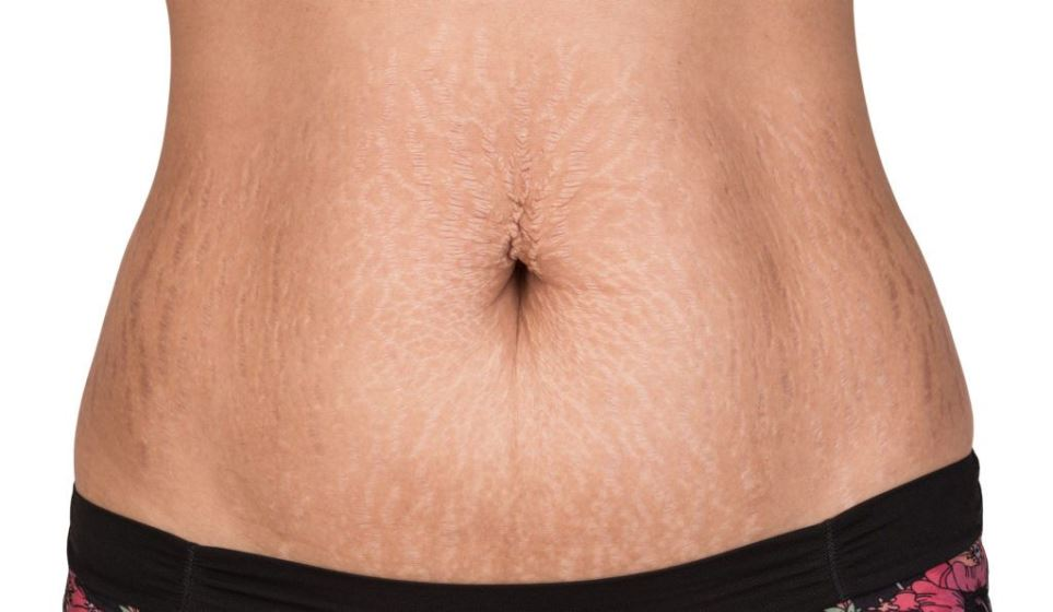 how to hide stretch marks